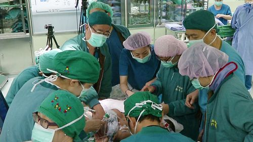 Filipino conjoined twins given new lease on life in Taiwan
