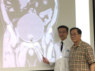 攝護腺肥大難啟齒 延誤治療險釀尿毒症
