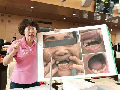 老人假牙補助太嚴格  林佳龍:研議更彈性申請