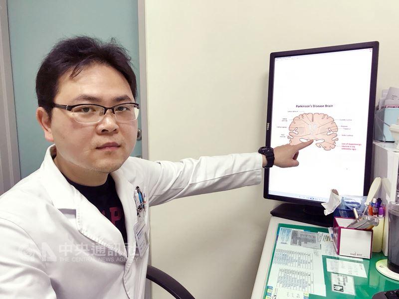 台中烏日林新醫院神經內科主任宋兆家9日表示,患者大腦基底核的黑質細胞退化,使多巴胺神經傳導物質產生不夠導致帕金森氏症,屬神經退化性疾病,以出現動作障礙為主。(烏日林新醫院提供)中央社記者蘇木春傳真 107年4月9日