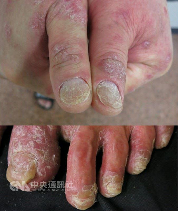 一名25歲女上班族8年前出現指甲泛黃、變厚、有凹洞等症狀,勤擦護手霜並以指甲油遮醜,直到近年腳跟疼痛、頭皮屑爆量,就醫才發現已惡化成乾癬性關節炎。圖為乾癬指甲病變情形。(蕭玉屏提供)中央社記者張茗喧傳真 107年6月22日