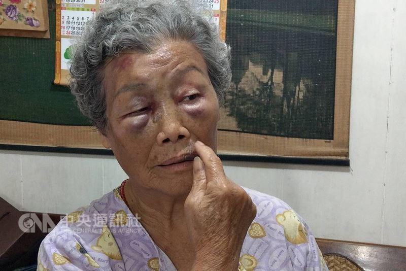 苗栗縣南庄鄉一名77歲老婦人(圖)突遭鄰居范姓男子闖入家中毆打,頭臉多處腫脹瘀青,范男事後卻辯稱是「誤會」,家屬決定提告,警方依傷害罪嫌將范男函送苗栗地檢署偵辦。中央社記者管瑞平攝 107年6月25日