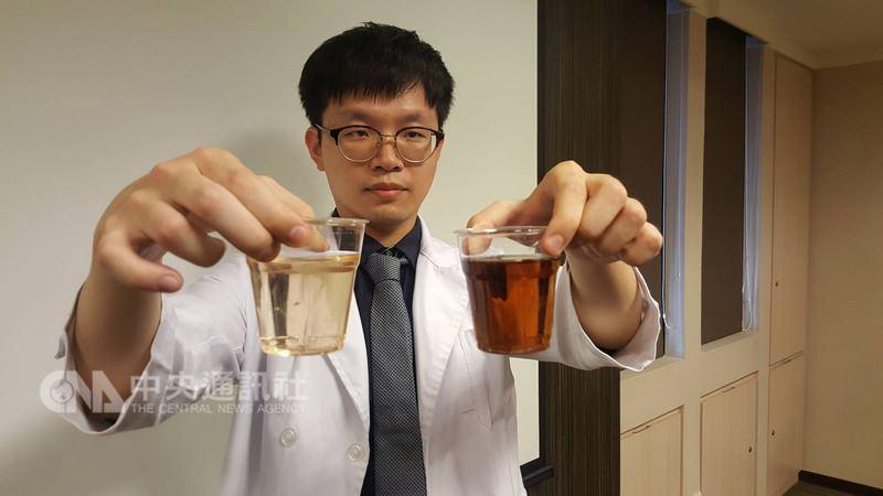 正常尿液顏色為淡黃色似綠茶(左杯),會因攝取的水量有濃淡之別,當出現深茶色尿如紅茶(右杯),甚至可樂的顏色,可能是肝膽疾病。中央社記者陳偉婷攝  107年7月12日