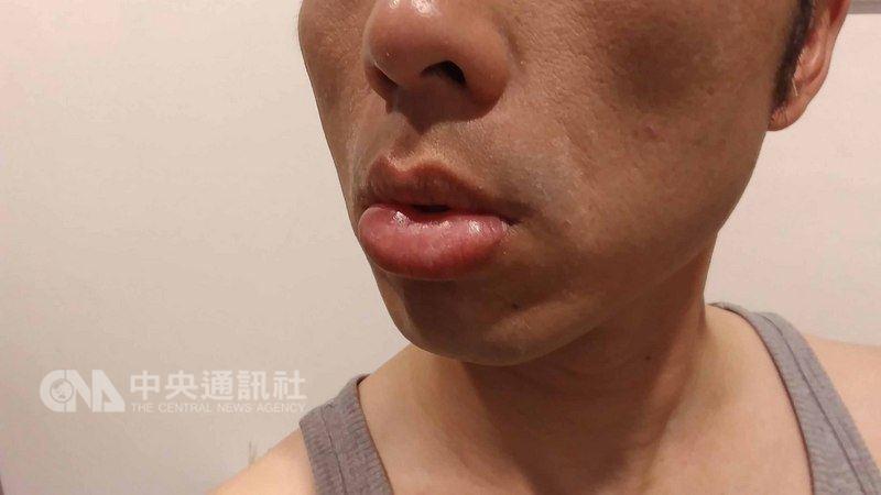 一名青年連續2天在海上進行救生訓練,結果隔日滿臉曬傷,連嘴唇都腫得像香腸。皮膚科醫師提醒,眼皮、嘴唇部位的皮膚比較薄,若這些部位曬傷,皮膚的反應也會比較激烈,除了應立即降溫,最好也就醫檢查、治療。(民眾提供)中央社記者陳偉婷傳真 107年7月22日