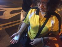 反年改圍城夜宿 聲援民眾遭拒馬刺傷
